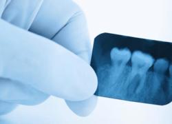 рентген зубов на руки